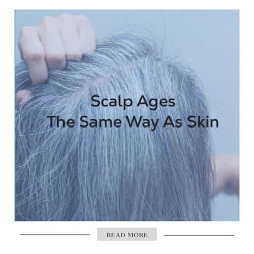 scalp-hair-aging-problem